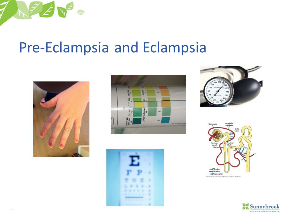11 Pre-Eclampsia and Eclampsia