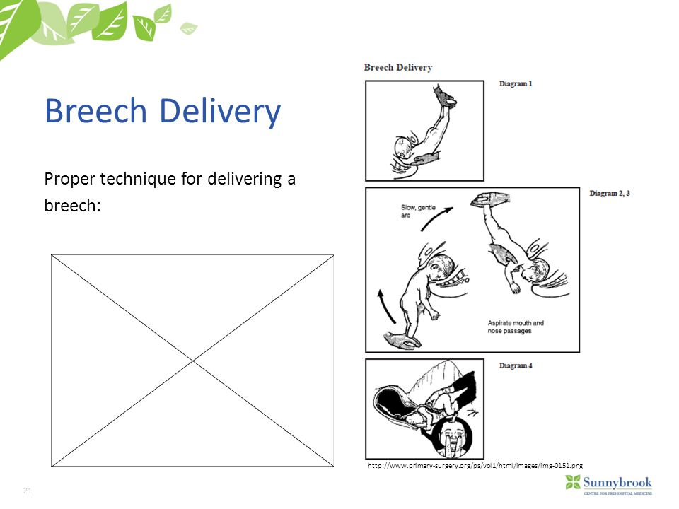 21 Breech Delivery Proper technique for delivering a breech: http://www.primary-surgery.org/ps/vol1/html/images/img-0151.png