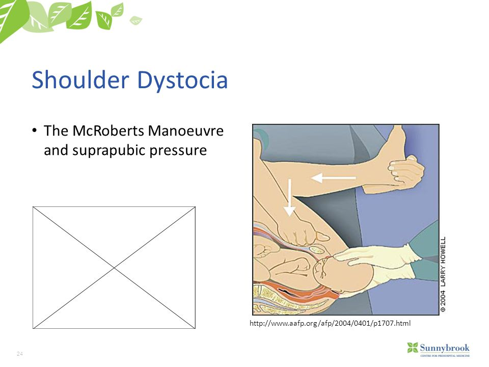 24 Shoulder Dystocia The McRoberts Manoeuvre and suprapubic pressure http://www.aafp.org/afp/2004/0401/p1707.html