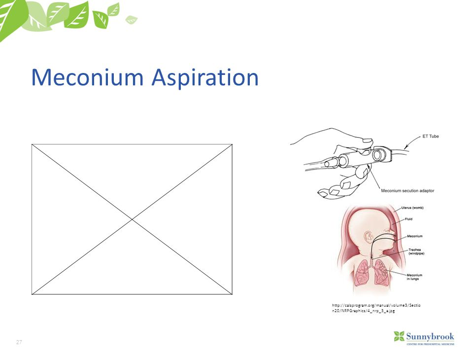 27 Meconium Aspiration http://calsprogram.org/manual/volume3/Sectio n20/NRPGraphics/4_nrp_3_a.jpg