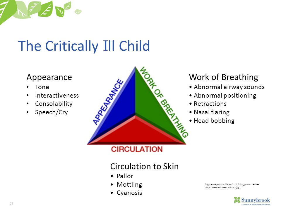 31 The Critically I ll Child img.medscape.com/pi/emed/ckb/clinical_procedures/799 26-1413466-1948389-2040427tn.jpg Appearance Tone Interactiveness Consolability Speech/Cry Work of Breathing Abnormal airway sounds Abnormal positioning Retractions Nasal flaring Head bobbing Circulation to Skin Pallor Mottling Cyanosis