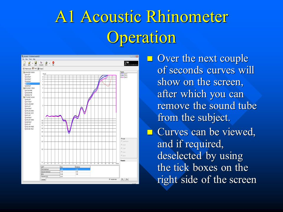 A1 Acoustic Rhinometer Operation Over the next couple of seconds curves will show on the screen, after which you can remove the sound tube from the su
