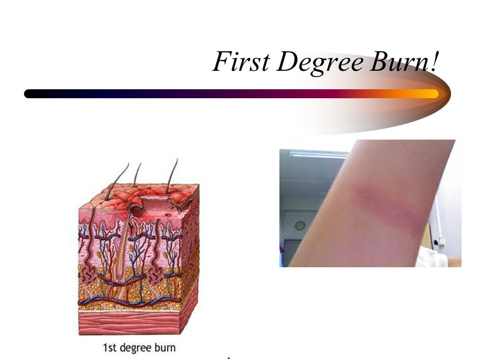 First Degree Burn!