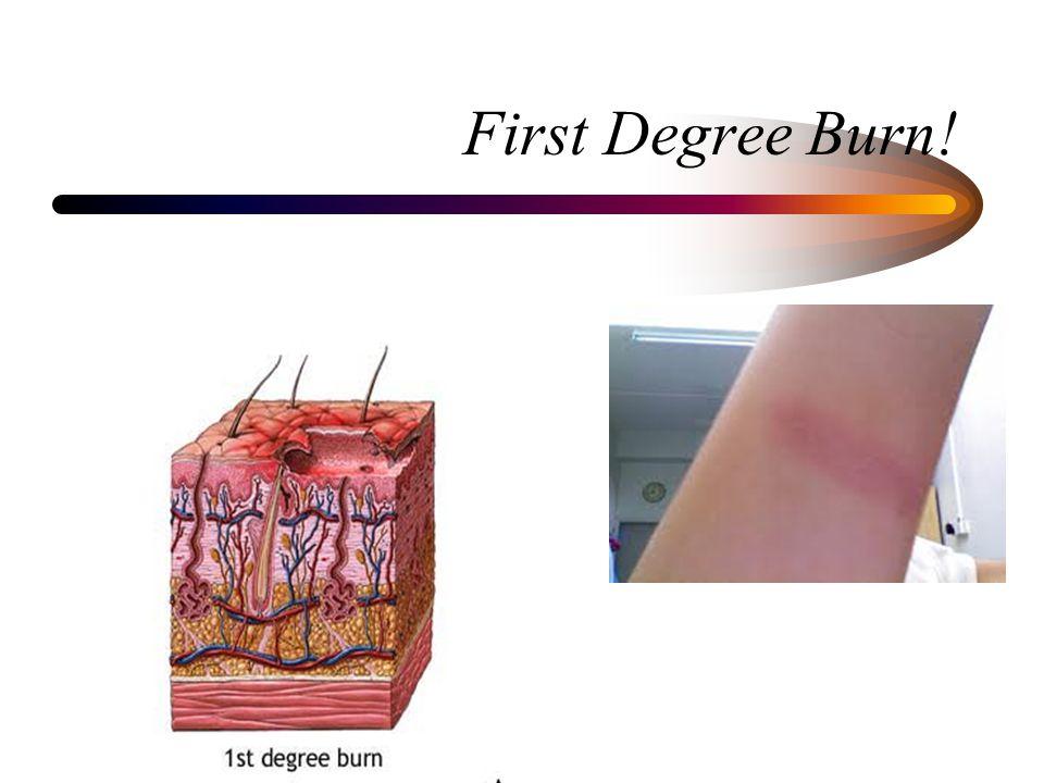 First Degree Burn!