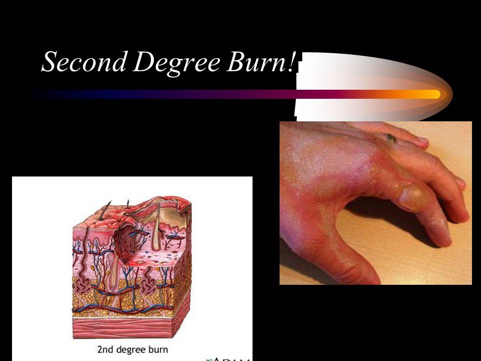 Second Degree Burn!