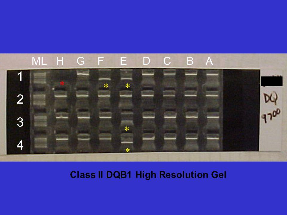 Class II DQB1 High Resolution Gel 12341234 ML H G F E D C B A * ** * *