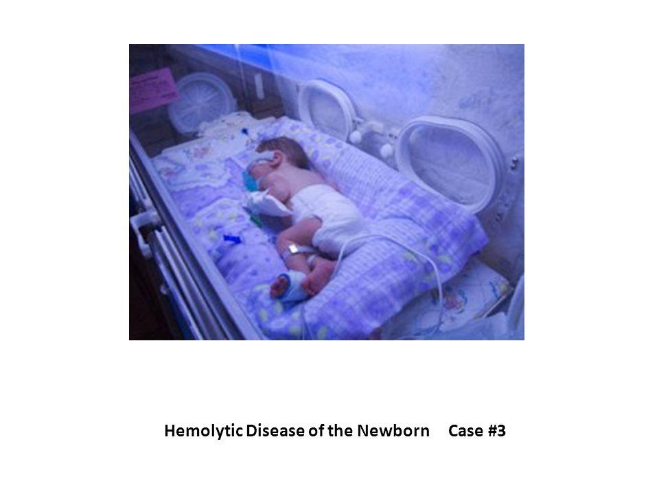 Hemolytic Disease of the Newborn Case #3