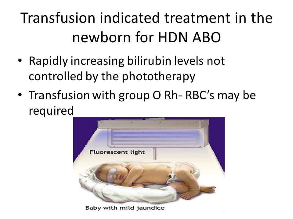 Transfusion indicated treatment in the newborn for HDN ABO Rapidly increasing bilirubin levels not controlled by the phototherapy Transfusion with group O Rh- RBC's may be required