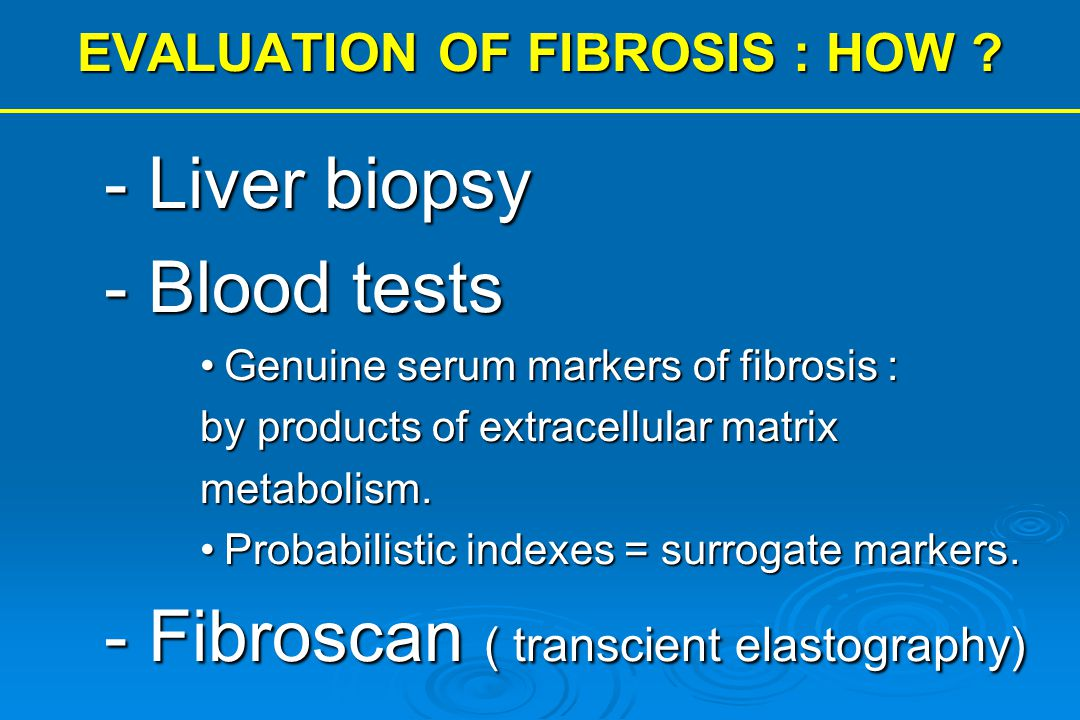 EVALUATION OF FIBROSIS : HOW ? - Liver biopsy - Blood tests Genuine serum markers of fibrosis :Genuine serum markers of fibrosis : by products of extr