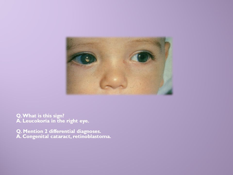 Q. What is this sign? A. Leucokoria in the right eye. Q. Mention 2 differential diagnoses. A. Congenital cataract, retinoblastoma.