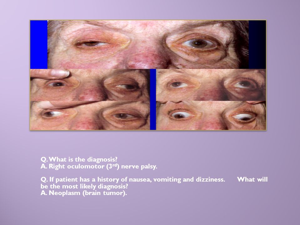 Q. What is the diagnosis? A. Right oculomotor (3 rd ) nerve palsy. Q. If patient has a history of nausea, vomiting and dizziness. What will be the mos