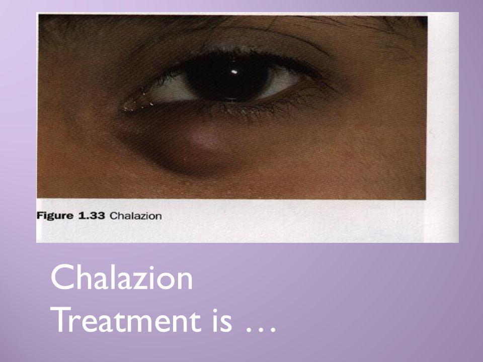 Chalazion Treatment is …