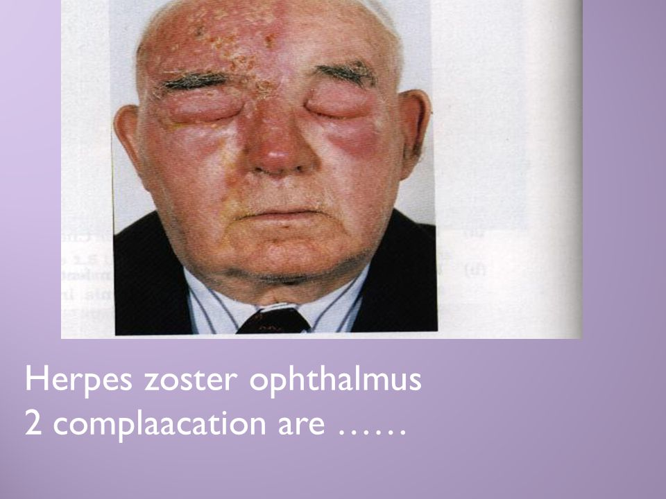Herpes zoster ophthalmus 2 complaacation are ……