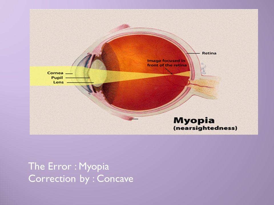 The Error : Myopia Correction by : Concave