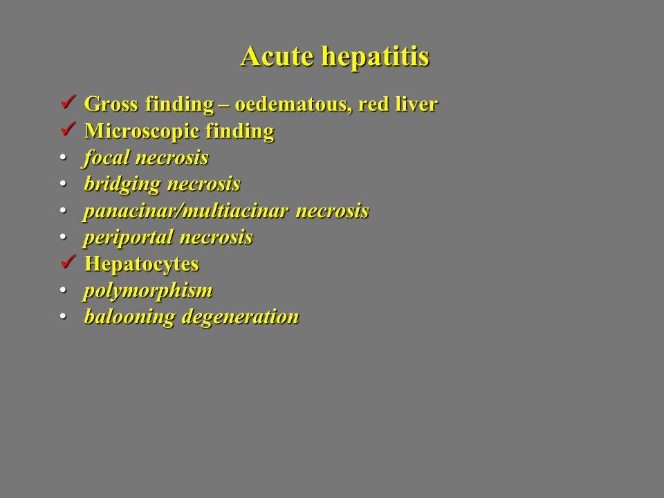 Acute hepatitis Gross finding – oedematous, red liver Gross finding – oedematous, red liver Microscopic finding Microscopic finding focal necrosisfoca