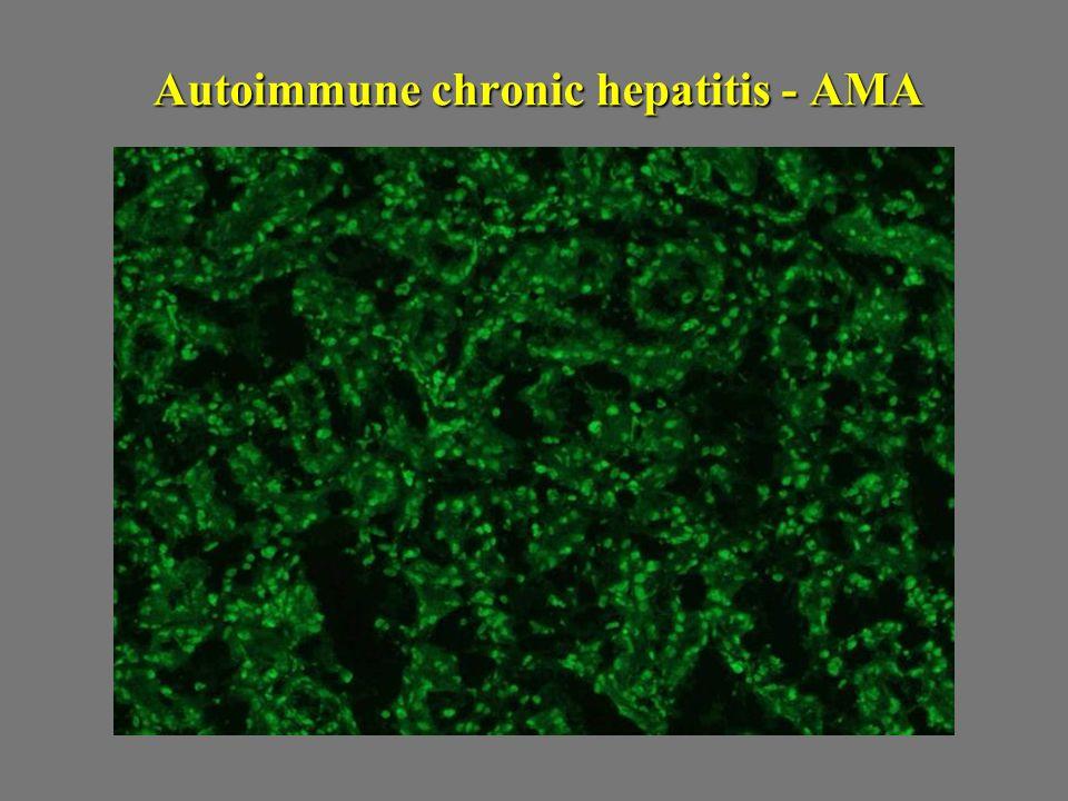 Autoimmune chronic hepatitis - AMA