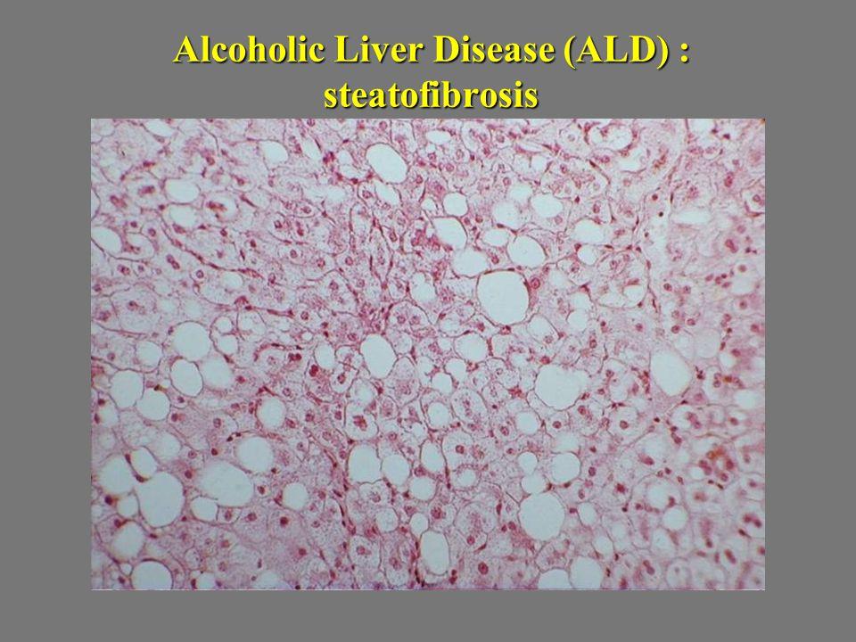 Alcoholic Liver Disease (ALD) : steatofibrosis