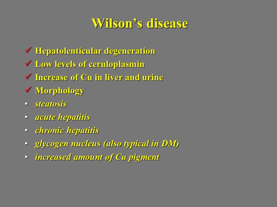 Wilson's disease Hepatolenticular degeneration Hepatolenticular degeneration Low levels of ceruloplasmin Low levels of ceruloplasmin Increase of Cu in