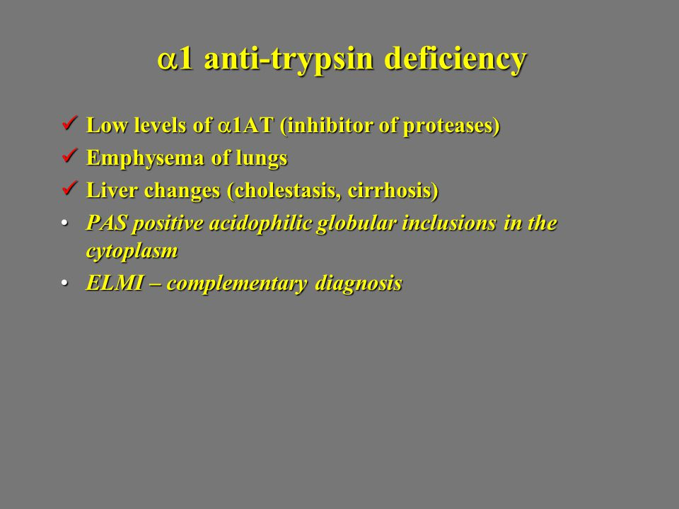  1 anti-trypsin deficiency Low levels of  1AT (inhibitor of proteases) Low levels of  1AT (inhibitor of proteases) Emphysema of lungs Emphysema of