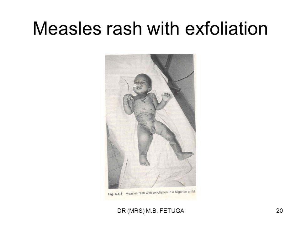 DR (MRS) M.B. FETUGA20 Measles rash with exfoliation