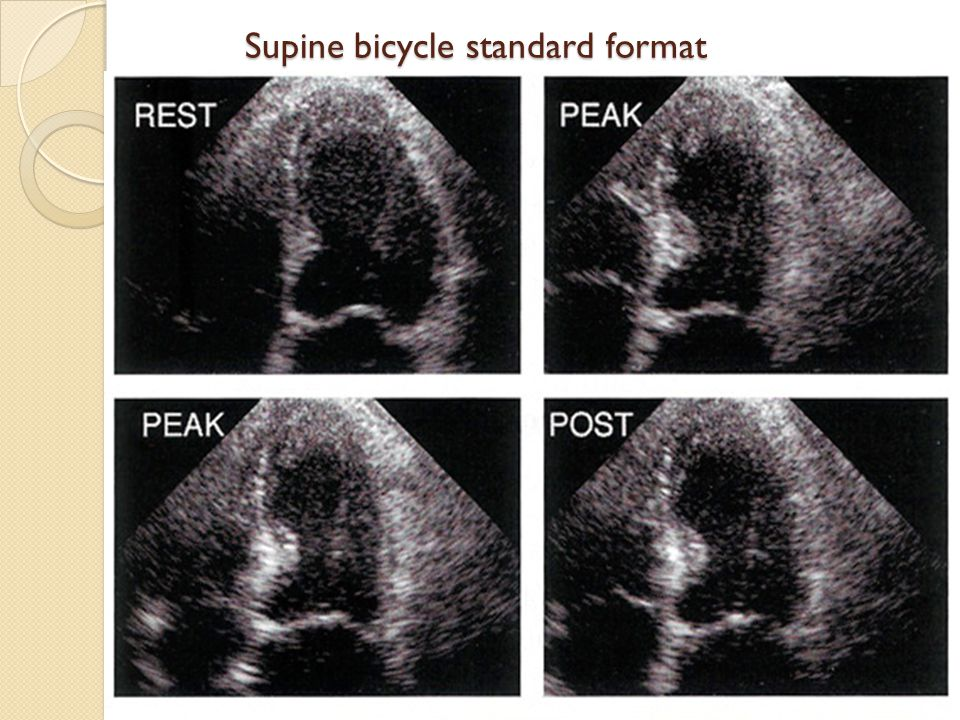Supine bicycle standard format Supine bicycle standard format