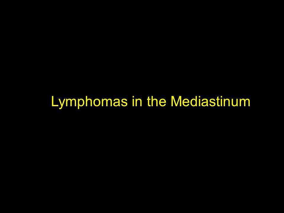 Lymphomas in the Mediastinum