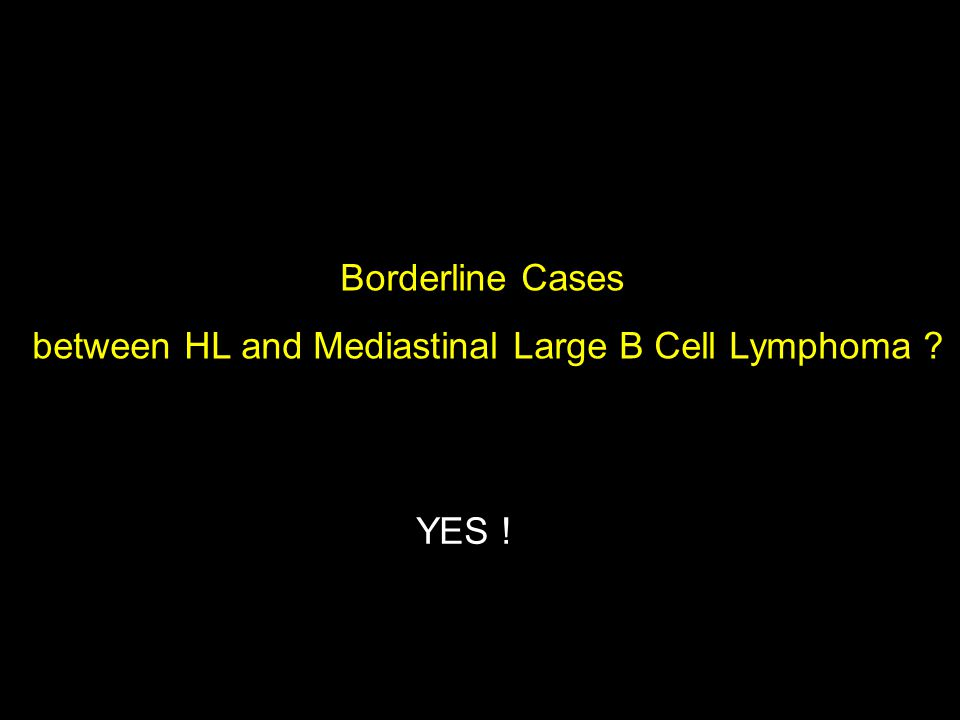 Borderline Cases between HL and Mediastinal Large B Cell Lymphoma YES !