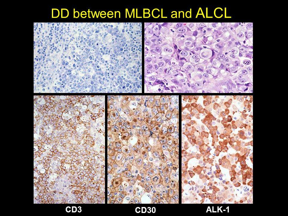DD between MLBCL and ALCL CD3 CD30 ALK-1