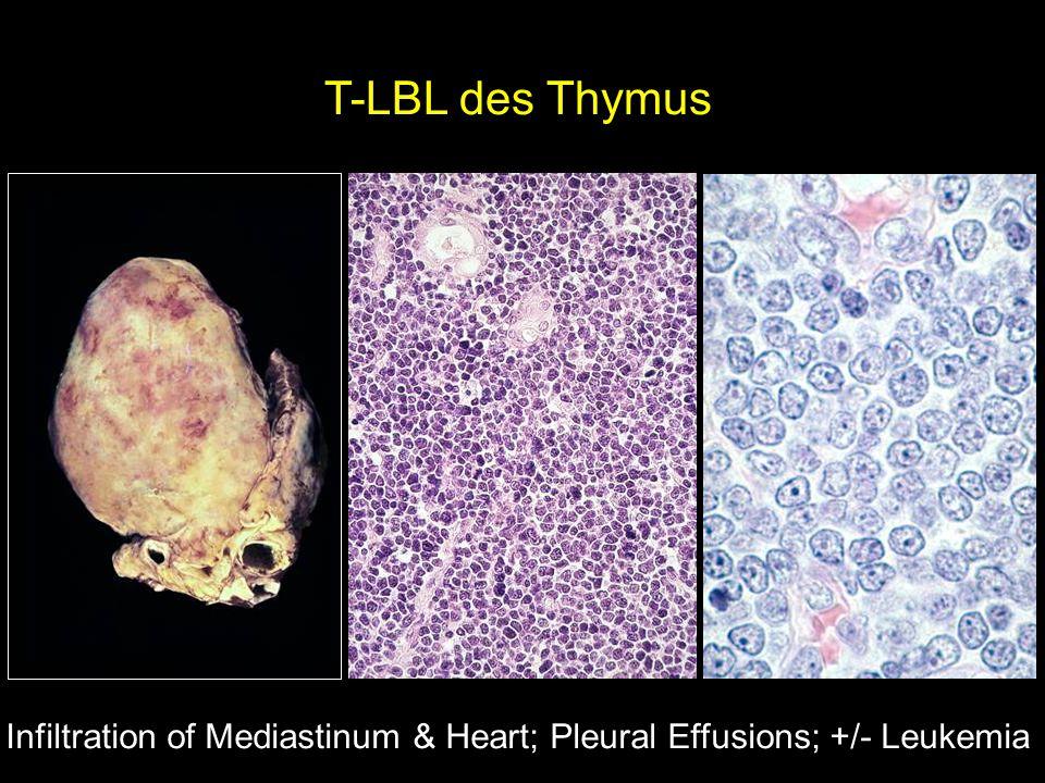 T-LBL des Thymus Infiltration of Mediastinum & Heart; Pleural Effusions; +/- Leukemia