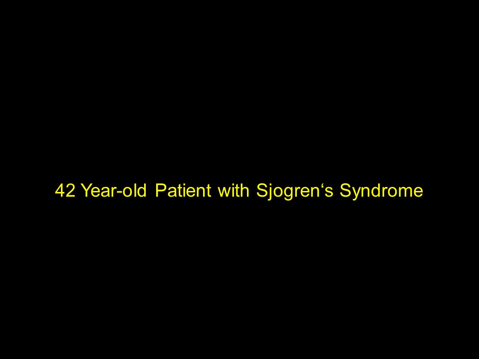 42 Year-old Patient with Sjogren's Syndrome