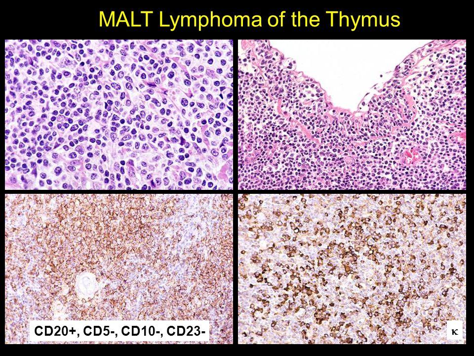 MALT Lymphoma of the Thymus CD20+, CD5-, CD10-, CD23- 