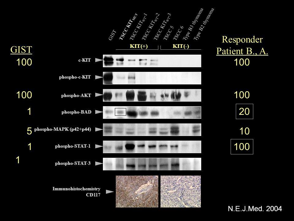 Type B3 thymomaType B2 thymoma GIST TSCC KIT MUT TSCC KIT WT -1TSCC KIT WT -2TSCC KIT WT -3 TSCC 5TSCC 6 phospho-MAPK (p42+p44) c-KIT phospho-c-KIT ph