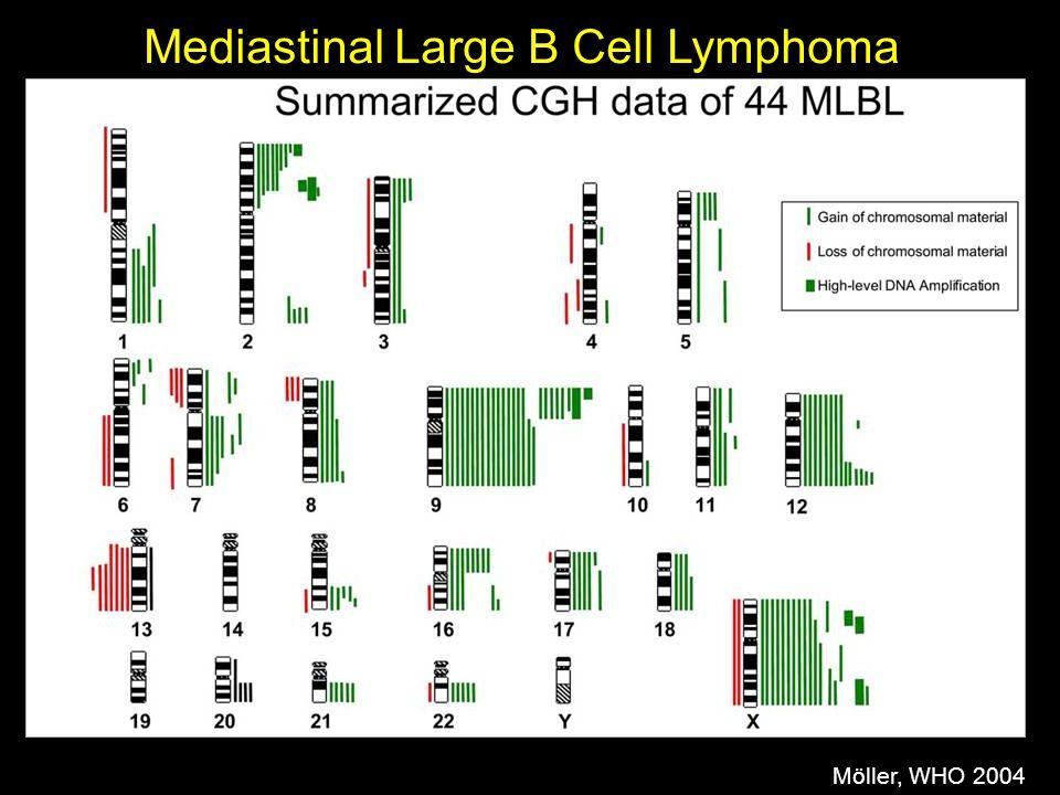 Möller, WHO 2004 Mediastinal Large B Cell Lymphoma