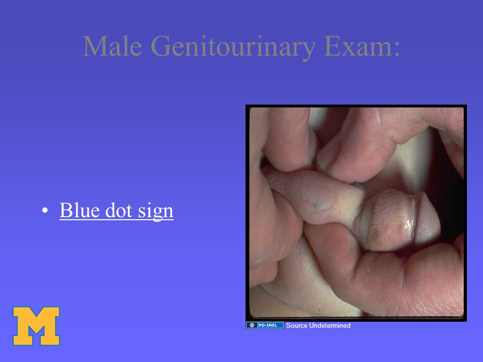Testicular Torsion: Diagnostic Tests History and PE often are enough Nuclear testicular scan or Doppler ultrasound