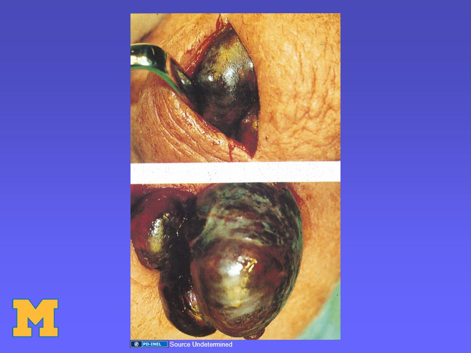 Epididymitis/Orchitis Infection/Inflammation –Usually retrograde infection up the vas deferens –Sometimes can be due to systemic illness ie viral –Blood-borne infection, ie TB
