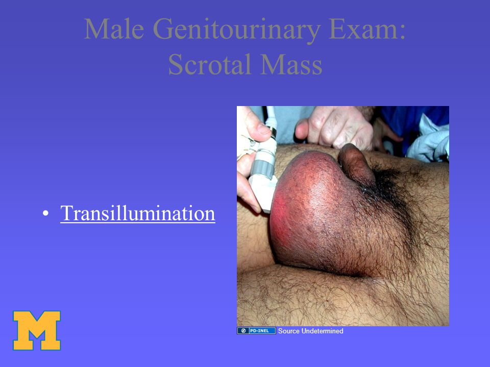 Testicular Cancer Epidemiology –Most common solid neoplasm in men <35 yrs of age –1-2% of all neoplasms –Highest incidence Caucasian > Asians > African-American