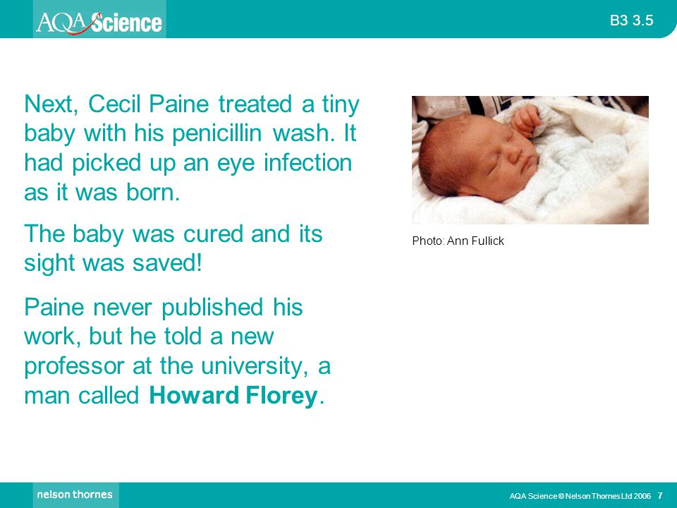 B3 3.5 AQA Science © Nelson Thornes Ltd 2006 7 The baby was cured and its sight was saved! Paine never published his work, but he told a new professor