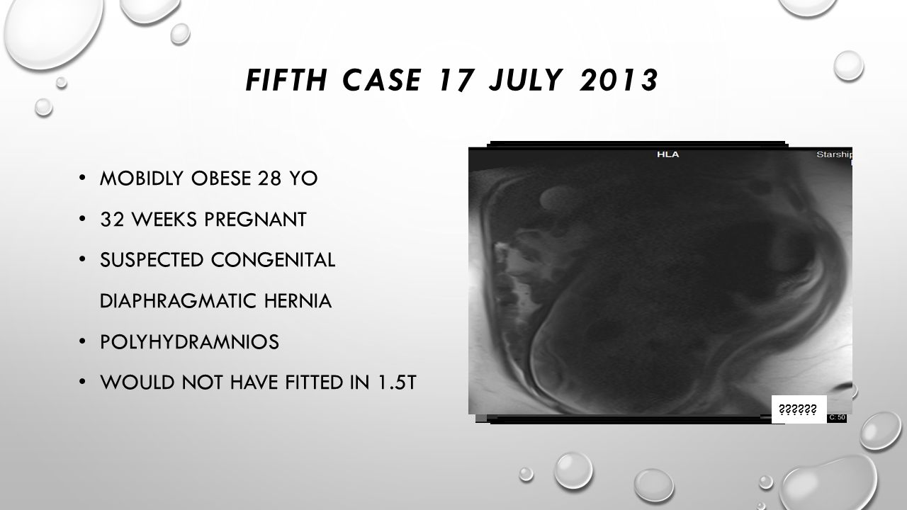 FIFTH CASE 17 JULY 2013 ?????? MOBIDLY OBESE 28 YO 32 WEEKS PREGNANT SUSPECTED CONGENITAL DIAPHRAGMATIC HERNIA POLYHYDRAMNIOS WOULD NOT HAVE FITTED IN