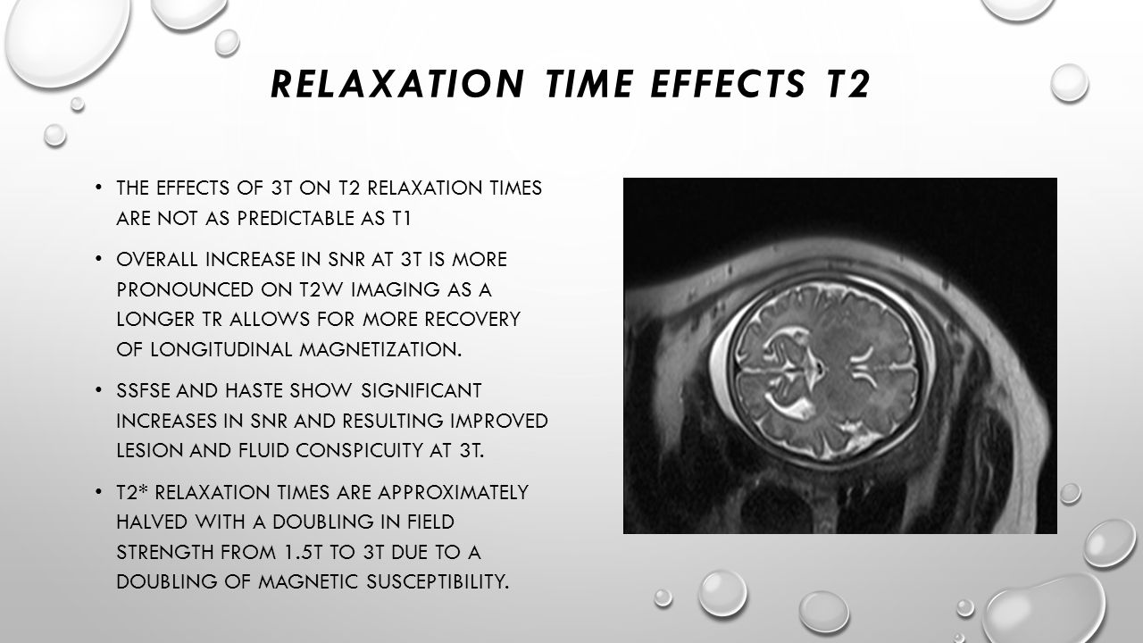 RELAXATION TIME EFFECTS T2 THE EFFECTS OF 3T ON T2 RELAXATION TIMES ARE NOT AS PREDICTABLE AS T1 OVERALL INCREASE IN SNR AT 3T IS MORE PRONOUNCED ON T
