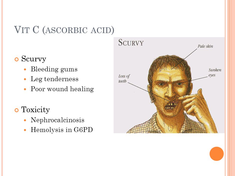 V IT C ( ASCORBIC ACID ) Scurvy Bleeding gums Leg tenderness Poor wound healing Toxicity Nephrocalcinosis Hemolysis in G6PD