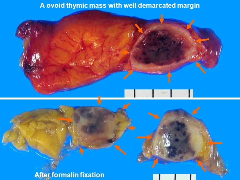 A ovoid thymic mass with well demarcated margin After formalin fixation
