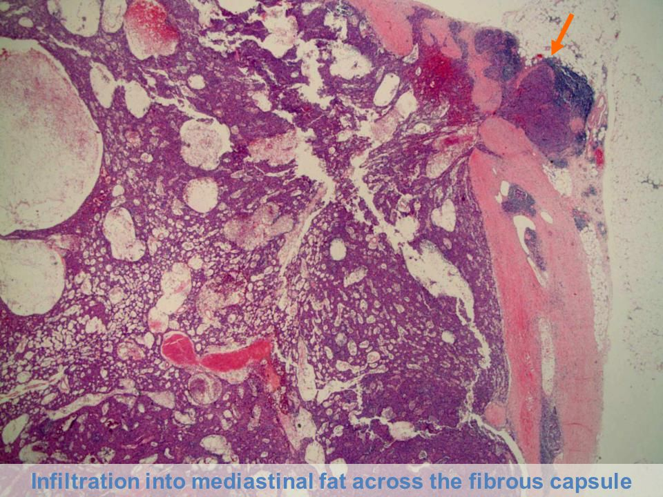 Infiltration into mediastinal fat across the fibrous capsule