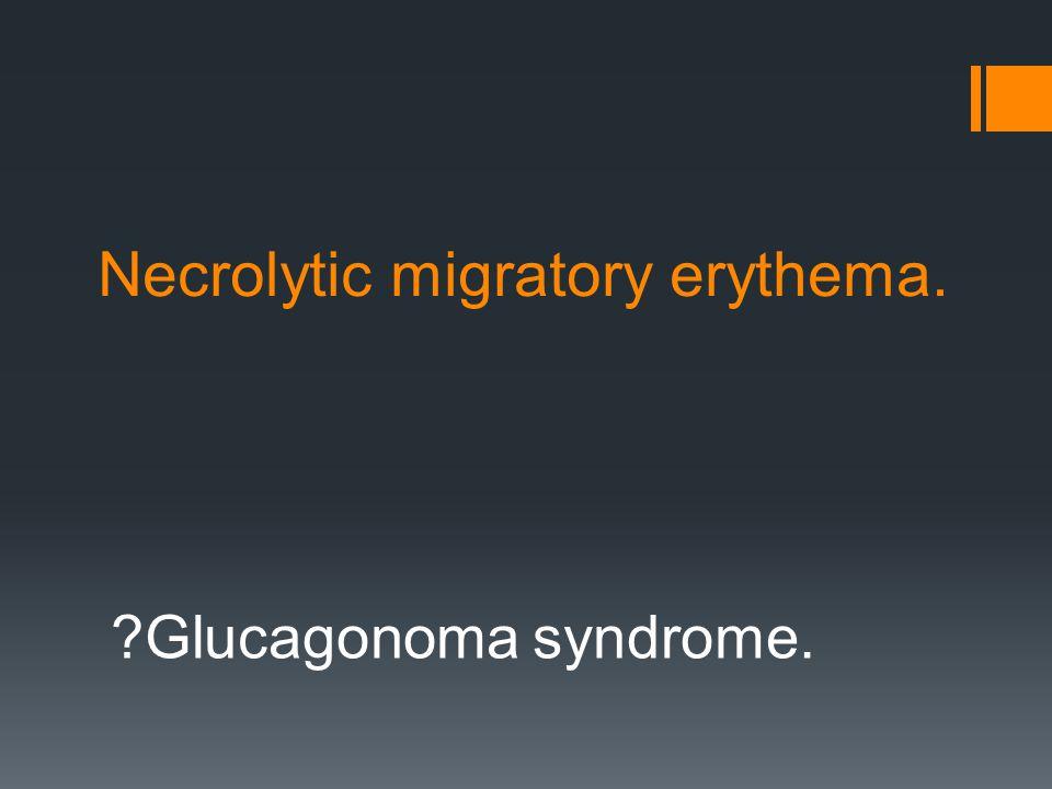 ?Glucagonoma syndrome. Necrolytic migratory erythema.