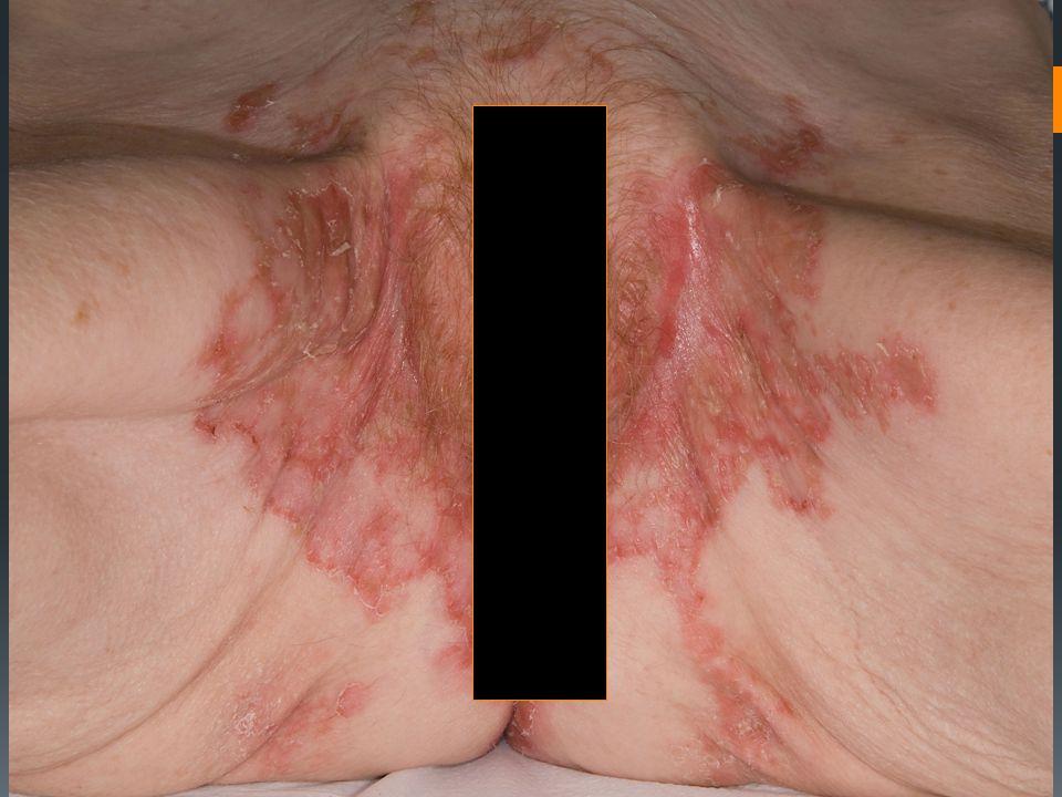 History  Rash lower legs – eczema. New erosive rash intertriginous areas.