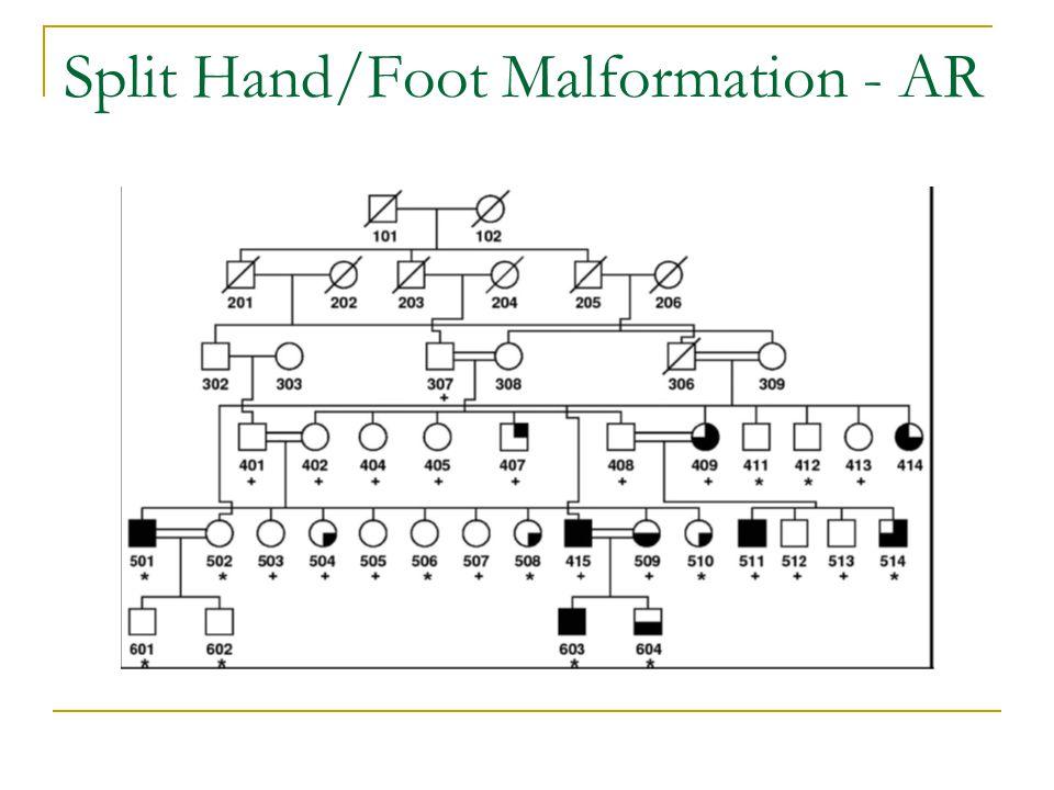 Split Hand/Foot Malformation - AR