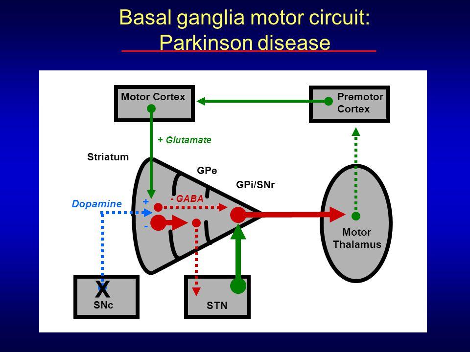 Basal ganglia motor circuit: Parkinson disease Striatum Motor Cortex Motor Thalamus Premotor Cortex + Glutamate - GABA GPe GPi/SNr STN Dopamine SNc +