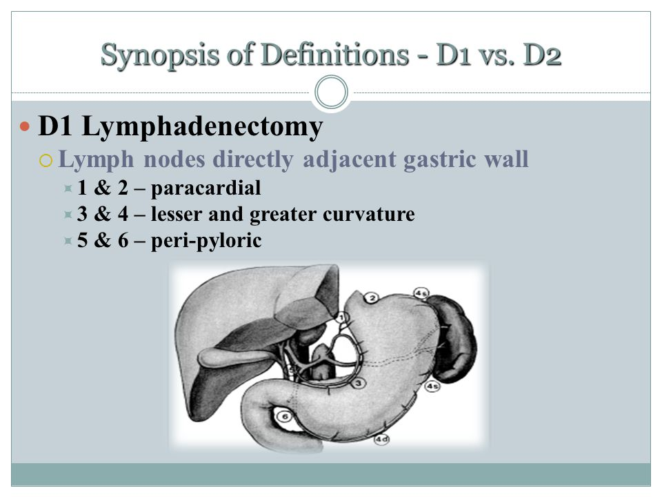 Synopsis of Definitions - D1 vs. D2 D1 Lymphadenectomy  Lymph nodes directly adjacent gastric wall  1 & 2 – paracardial  3 & 4 – lesser and greater