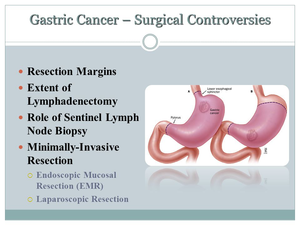 Gastric Cancer – Surgical Controversies Resection Margins Extent of Lymphadenectomy Role of Sentinel Lymph Node Biopsy Minimally-Invasive Resection 