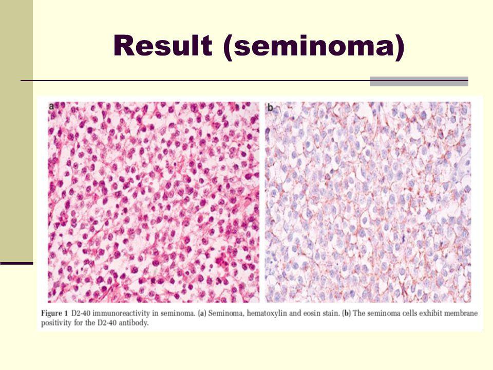 Result (seminoma)