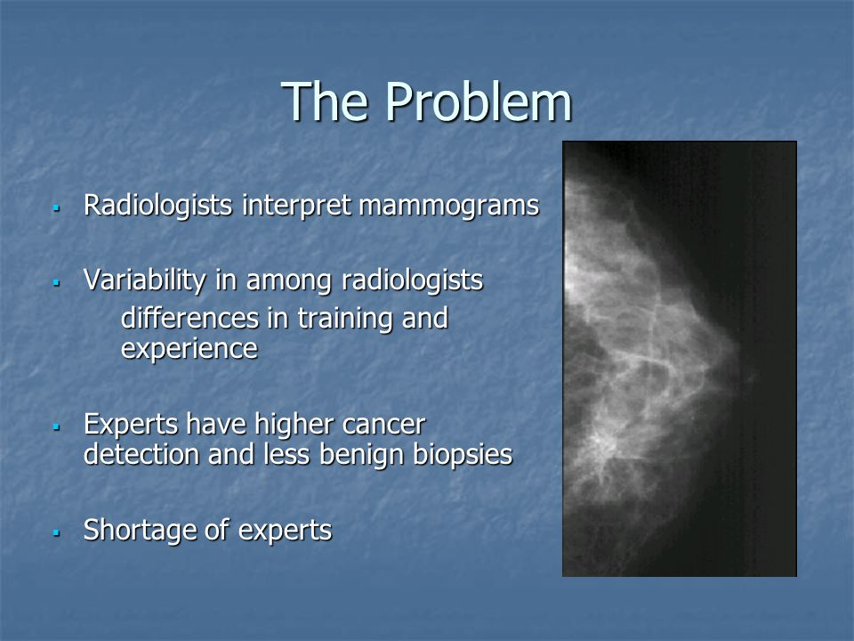 The Problem  Radiologists interpret mammograms  Variability in among radiologists differences in training and experience differences in training and experience  Experts have higher cancer detection and less benign biopsies  Shortage of experts